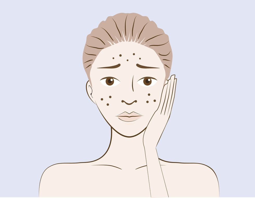 The Grown Up Guide To Teenage Skin How To Tackle Adult Acne Stylist